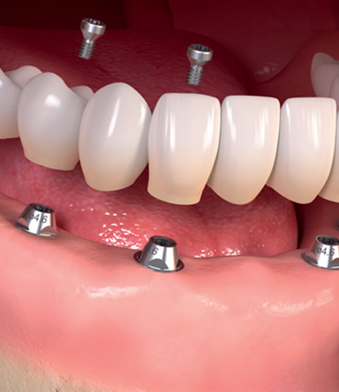 best dental implants in Charlotte